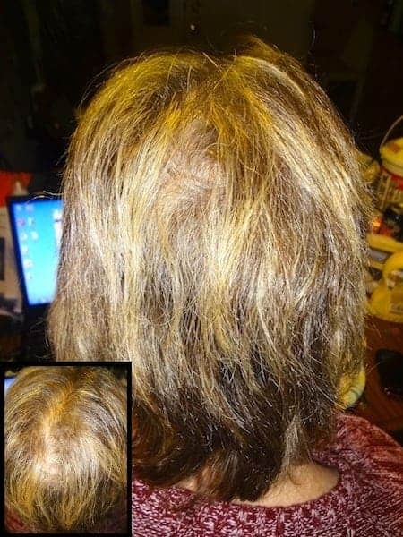 Bioten Biotin Hair Growth