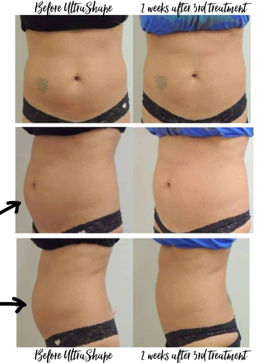 ultrashape results after 3 treatments
