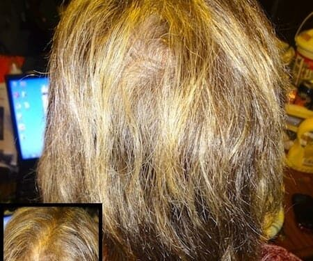 Bioten Biotin Hair Growth