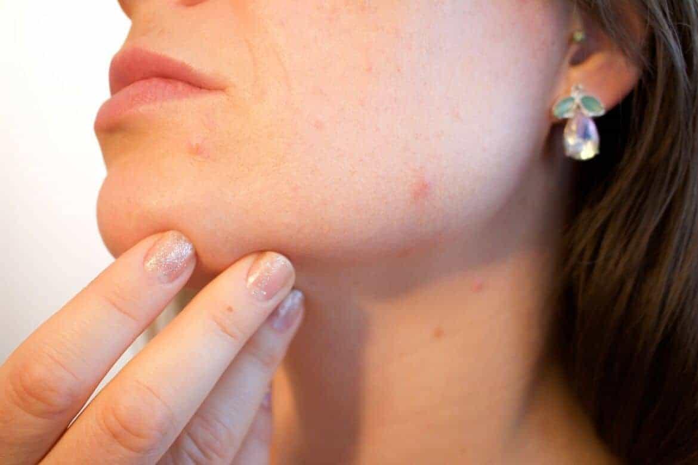 led for acne
